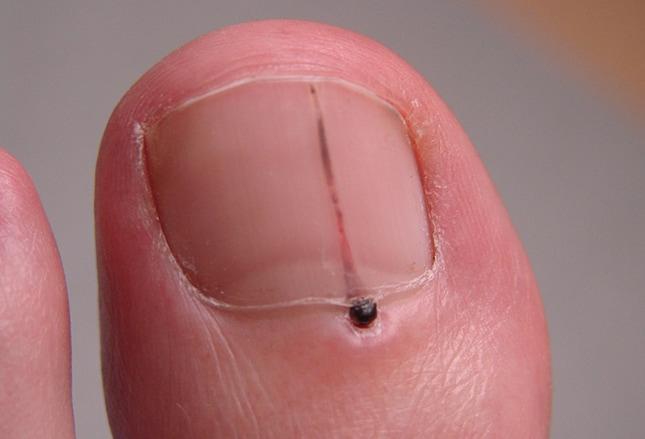 Nagelanomalien Was Auffälligkeiten An Händen Und Füßen Verraten
