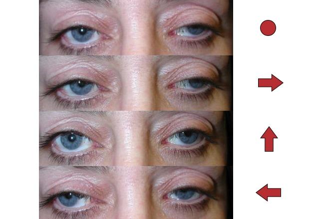 oculomotorius parese diabetes mellitus