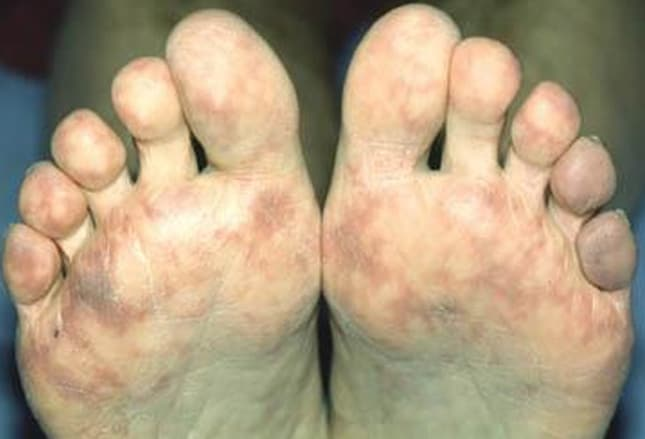 Fuß petechien Taubheit in