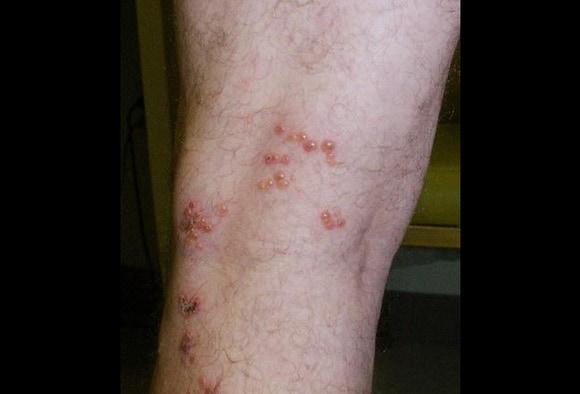 Hautausschlag aussehen hiv Hautausschläge und