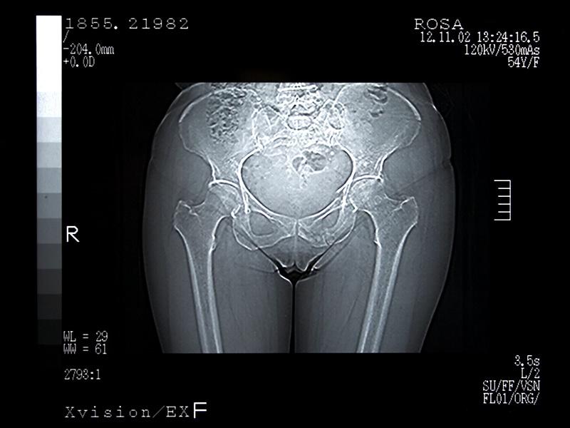 mri scan sex video