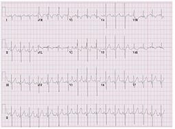 Comunicación interauricular e hipertensión pulmonar