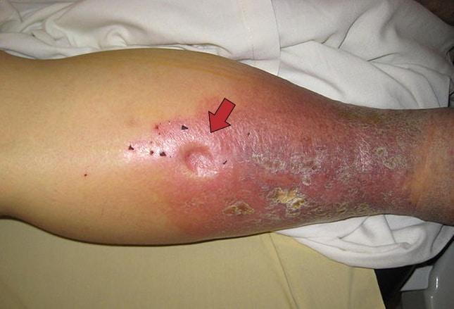 petequias normales