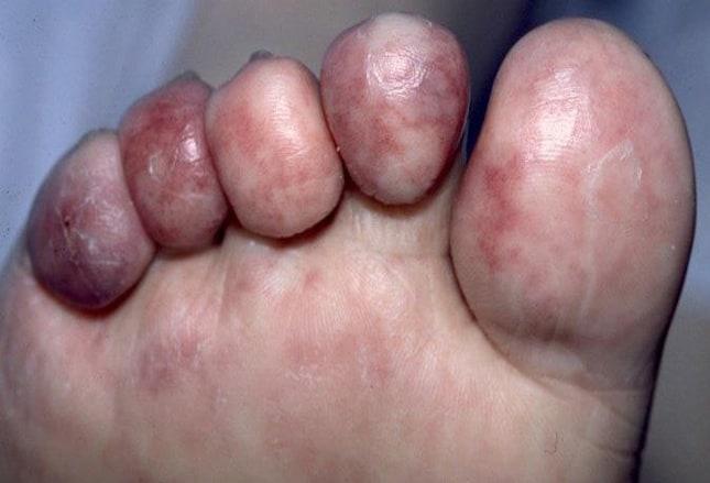 mancha negra en la piel del dedo gordo del pie