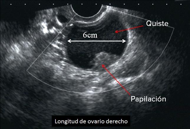 quiste simple ovario izquierdo