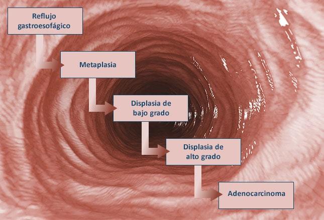 cura de estenosis esofágica para la diabetes