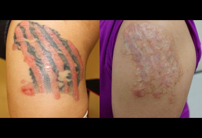 Reacciones Cutáneas A Tatuajes Alergias E Infecciones