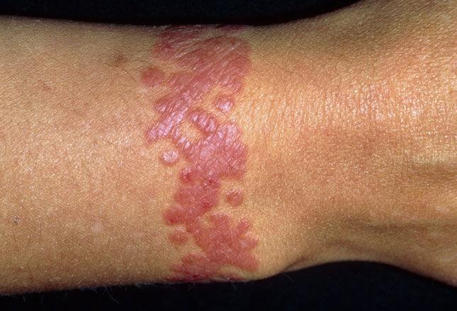 diabetes erupción cutánea en la pierna