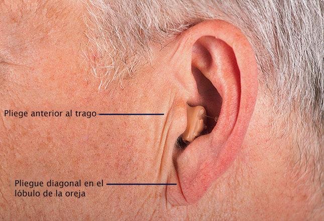 Coágulo de sangre detrás del lóbulo de la oreja