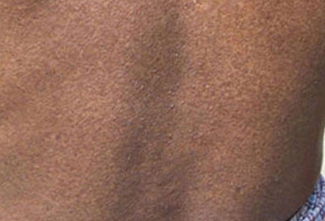 diabetes y manchas na de piel de dengue