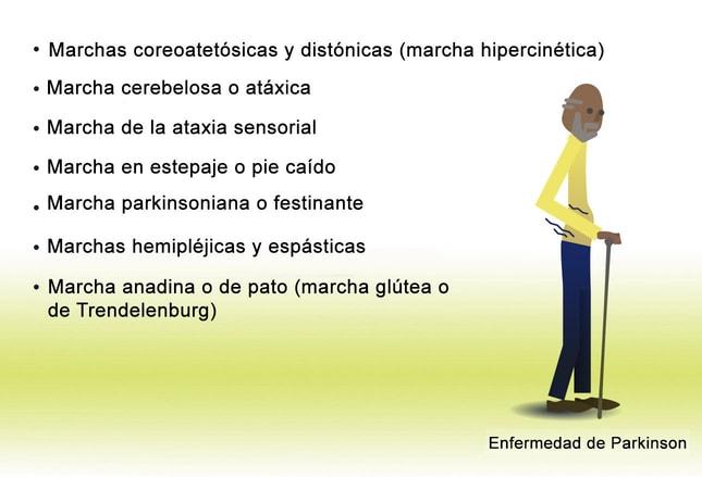ataxia cerebelosa aguda emedicina diabetes