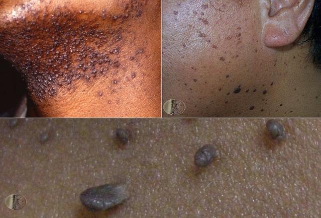 la enfermedad de Lyme puede causar celulitis
