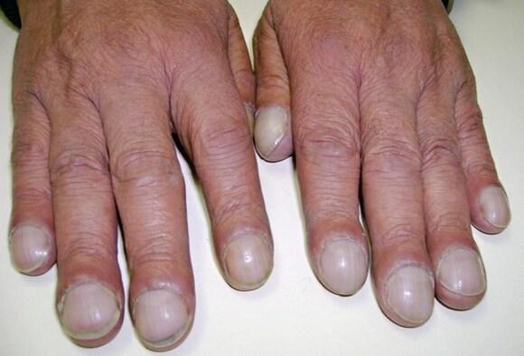 hongos en los dedos delas manos fotos