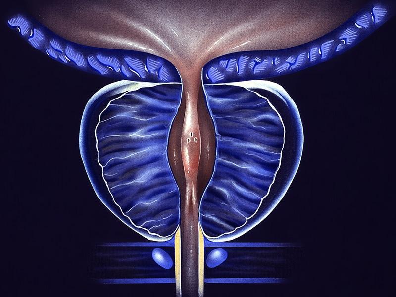 tratamiento del cáncer de próstata con mutación atm