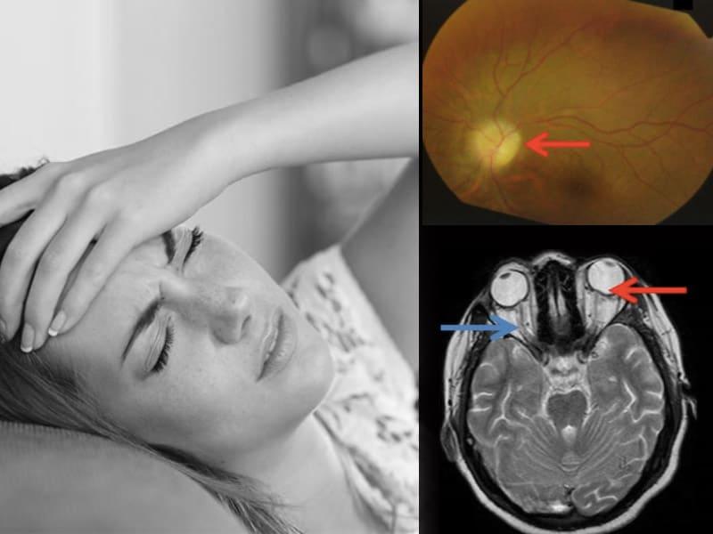 Topamax para el tratamiento idiopático de hipertensión intracraneal
