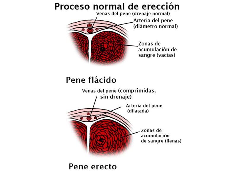 problemas de erección en el sujeto límite de