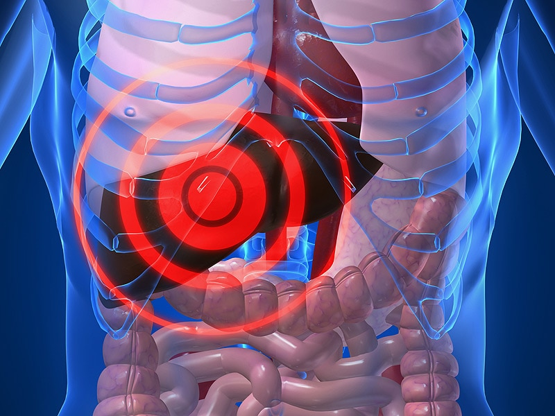 Cirrosis hemorrágica de las várices