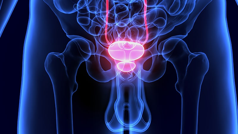 es radiación para próstata 8 semanas
