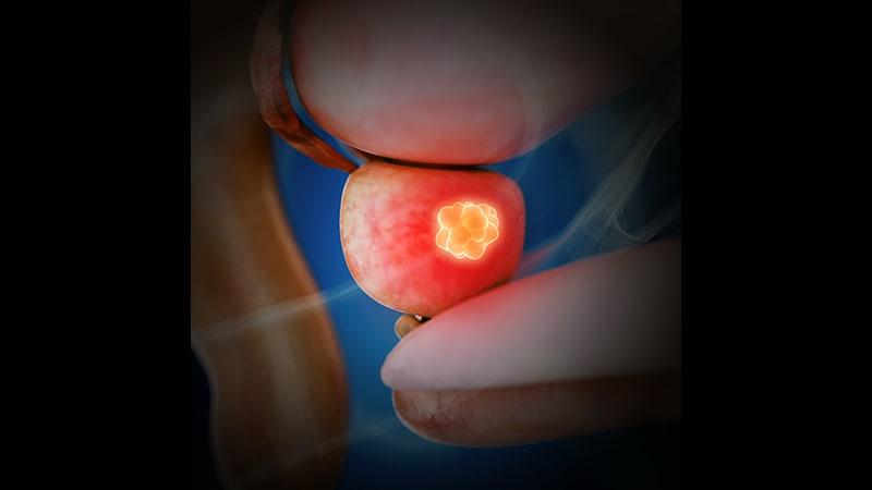 tratamiento para el cáncer de próstata avanzado en hombres con mutación brca2