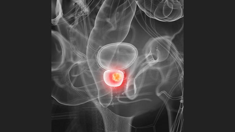 papel de la cirugía para el cáncer de próstata de alto riesgo
