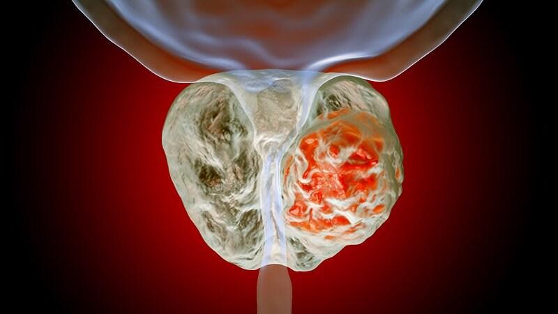 cambios clínicos en el tratamiento del cáncer de próstata