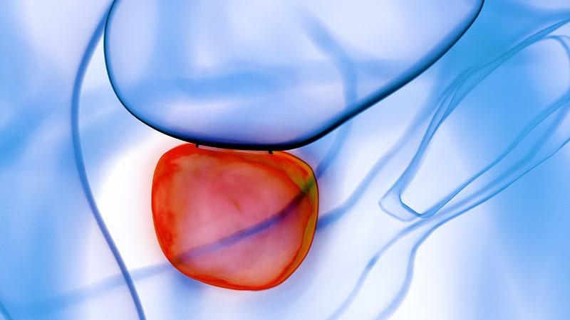 hay falsos positivos en la resonancia multiparamétrica de próstata
