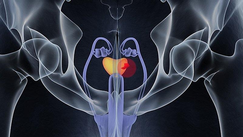 efectos de la radiación después de la cirugía de próstata