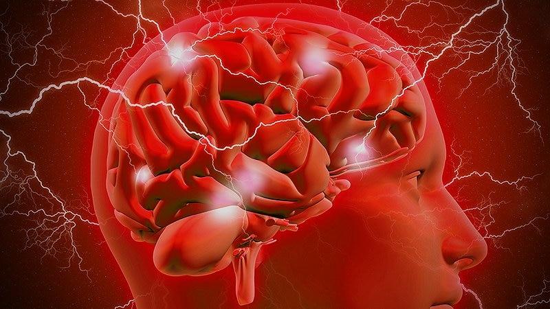 Pacientes con epilepsia pueden no referir convulsiones, según encuesta