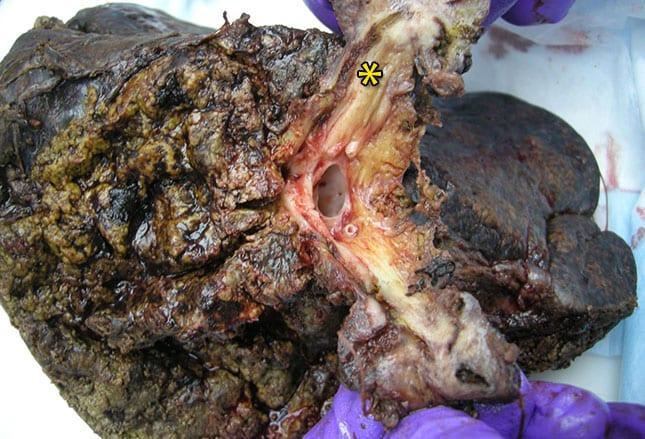 Cholangiocarcinoma gross
