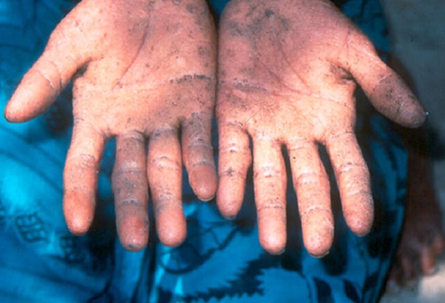 Manifestations cutanées des empoisonnements : 10 cas cliniques