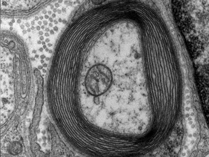Quiz sclérose en plaques : identification, diagnostic différentiel et prise en charge