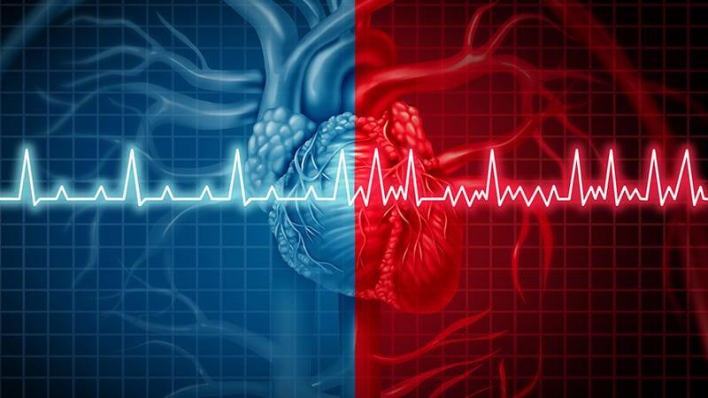 Nouvelles recommandations ESC sur la FA : les coups de cœur de W. Amara et C. Kouakam