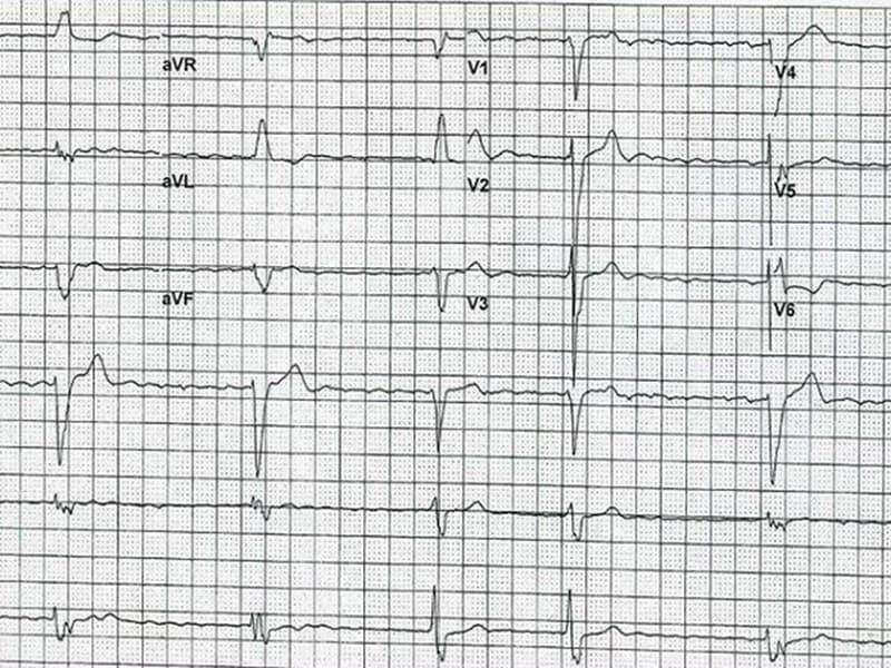 ECG: une histoire de fibrillation atriale