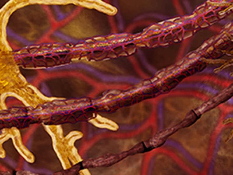 Quiz express: que savez-vous de la neuropathie diabétique?
