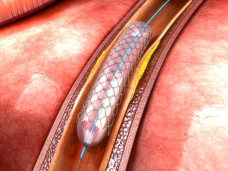 AOD et angioplastie : leçons pratiques de l'étude PIONEER