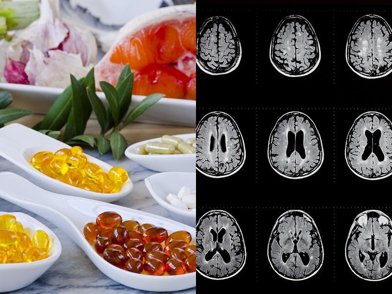 Sclérose en plaques et alimentation