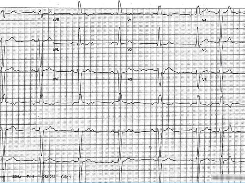 Quiz : un ECG enregistré pendant le sommeil
