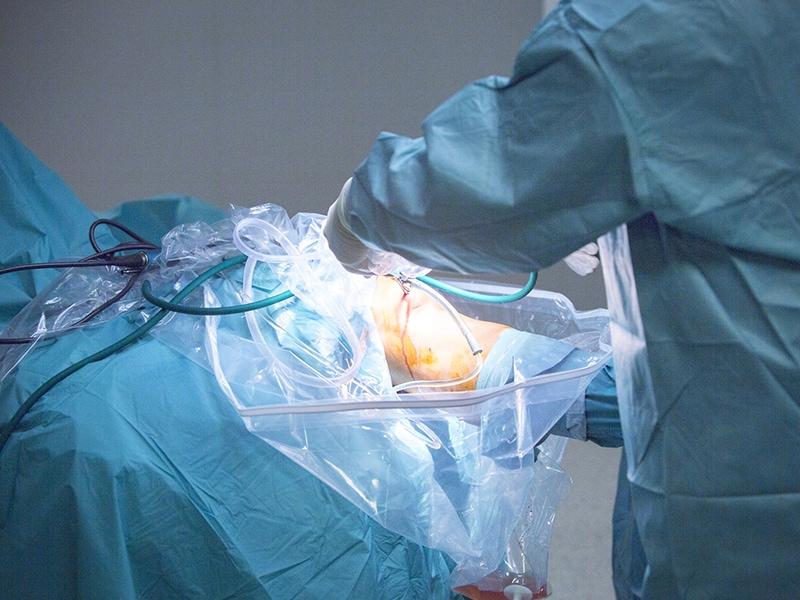 Jusqu quel ge un chirurgien peut il op rer - Jusqu a quel age peut on emprunter ...