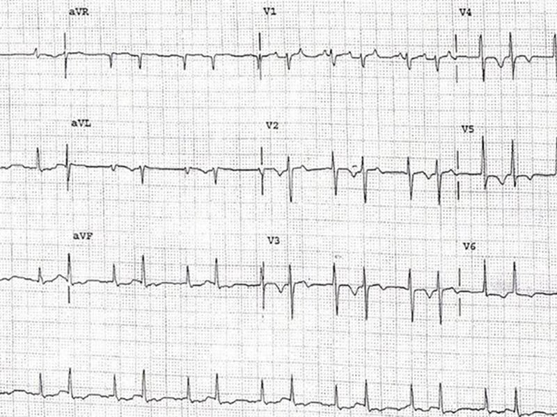 ECG : une crise hypertensive