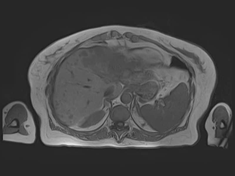 Cas clinique : perte de poids et douleur abdominale après un cancer du sein