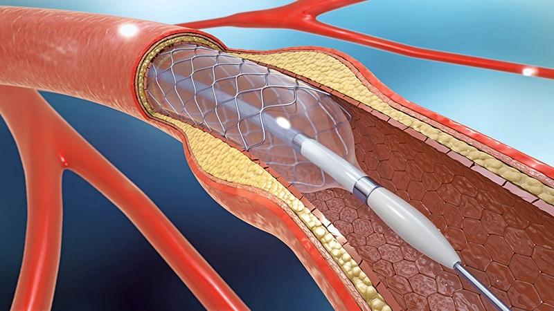 Revascularisation endovasculaire périphérique : alerte sur