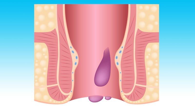 Le sexe anal après la chirurgie hémorroïde