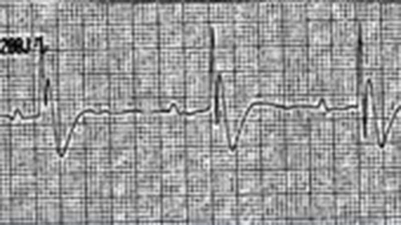 Cas clinique : jeune athlète en arrêt cardiaque