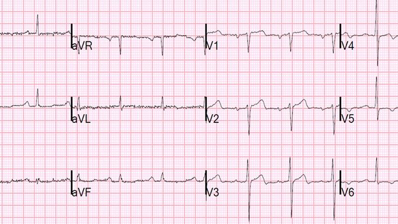 Les pièges ECG : comment les reconnaître ?