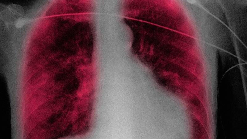 Quiz express : l'anémie chez l'insuffisant cardiaque