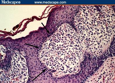 polyuria medscape
