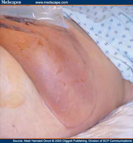 Cutaneous Signs of Infection in the Immunocompromised