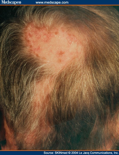 Hair follicle diseases leading to hair loss scarring alopecias authors and disclosures urmus Choice Image