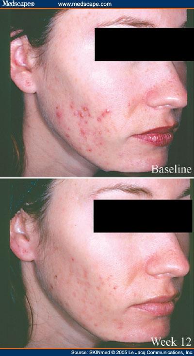 Cefadroxil Vs Doxycycline For Acne