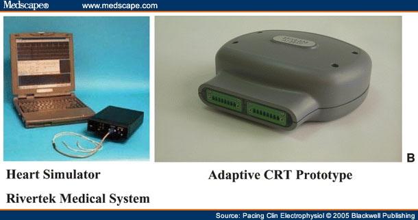 Adaptive Cardiac Resynchronization Therapy Device